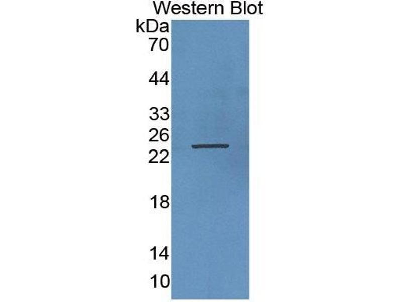Growth Hormone 1 (GH1) CLIA Kit (3)