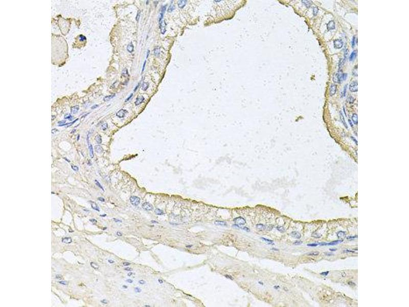Immunohistochemistry (IHC) image for anti-Haptoglobin Related Protein (HPR) antibody (ABIN4903962)