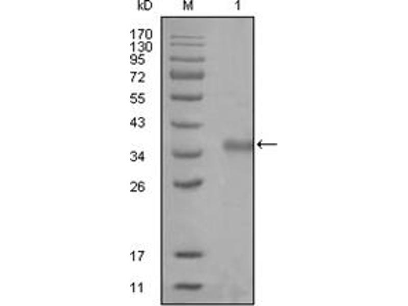 Western Blotting (WB) image for anti-Nuclear Receptor Co-Repressor 1 (NCOR1) antibody (ABIN1108391)