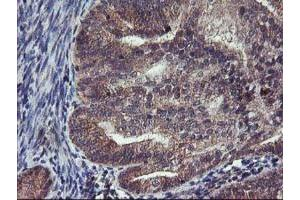 Immunohistochemistry (Paraffin-embedded Sections) (IHC (p)) image for anti-Fibroblast Growth Factor Receptor 2 (FGFR2) antibody (ABIN4311538)