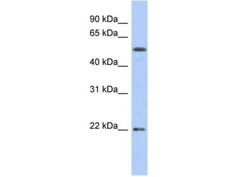 Western Blotting (WB) image for anti-Occludin (OCLN) (N-Term) antibody (ABIN2775620)
