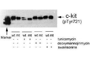 image for anti-KIT antibody (Mast/stem Cell Growth Factor Receptor) (pTyr721) (ABIN196992)