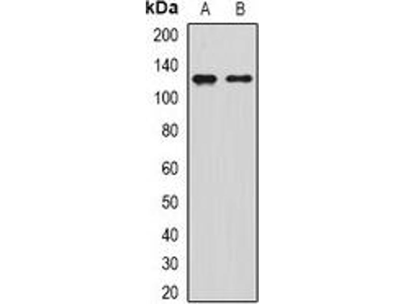 Western Blotting (WB) image for anti-Sirtuin 1 (SIRT1) antibody (ABIN3198318)