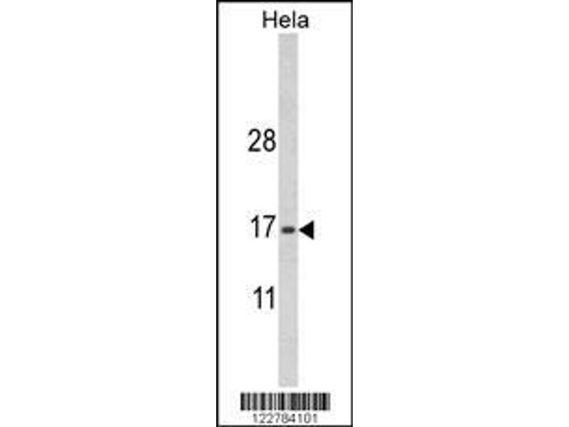 Western Blotting (WB) image for anti-MpV17 Mitochondrial Inner Membrane Protein (MPV17) (AA 24-50), (N-Term) antibody (ABIN652697)