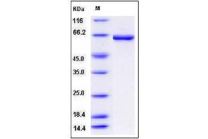Image no. 1 for Carnitine O-Octanoyltransferase (CROT) (AA 1-612), (Leu474Val-Mutant) protein (His tag) (ABIN2003723)