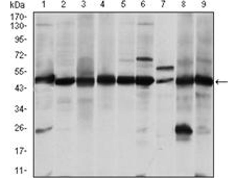 Western Blotting (WB) image for anti-Argininosuccinate Synthase 1 (ASS1) antibody (ABIN1105454)