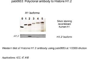 Image no. 1 for anti-Histone Cluster 1, H1c (HIST1H1C) (N-Term) antibody (ABIN410165)