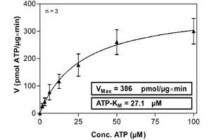 Image no. 2 for P21-Activated Kinase 1 (PAK1) (AA 1-545) protein (His-GST) (ABIN5570582)