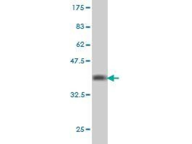 Western Blotting (WB) image for anti-SHC (Src Homology 2 Domain Containing) Transforming Protein 1 (SHC1) (AA 171-280) antibody (ABIN396022)