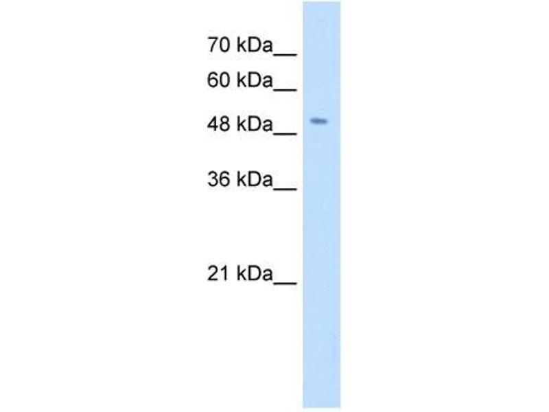 Image no. 2 for anti-Solute Carrier Family 18 (Vesicular Monoamine Transporter), Member 2 (SLC18A2) antibody (ABIN635107)