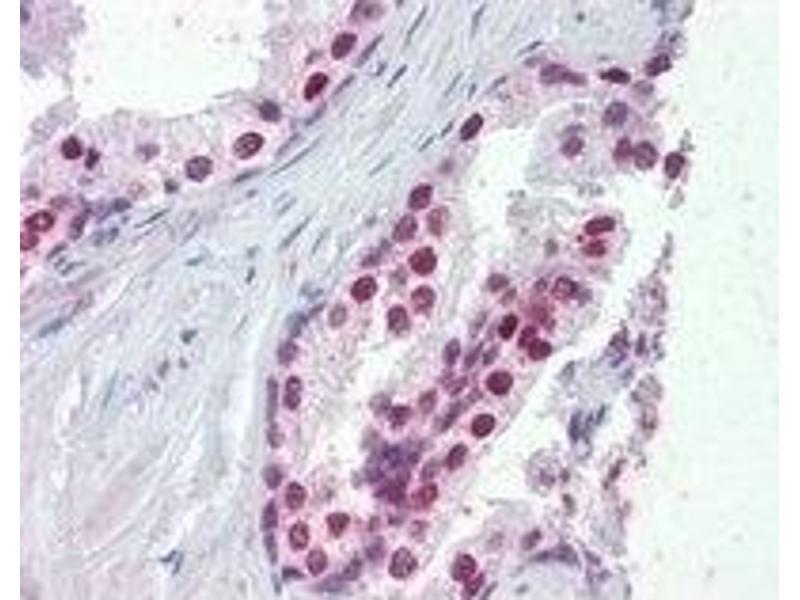 Image no. 2 for anti-FOXA1 antibody (Forkhead Box A1) (C-Term) (ABIN374334)