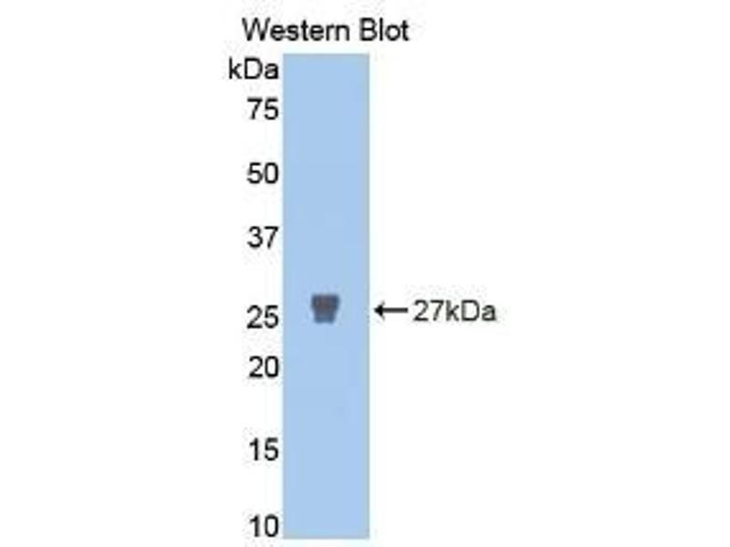 Western Blotting (WB) image for Matrix Metalloproteinase 2 (MMP2) ELISA Kit (ABIN6720518)