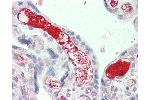 Immunohistochemistry (IHC) image for anti-Complement Component 3 (C3) (AA 1580-1592) antibody (ABIN2619415)