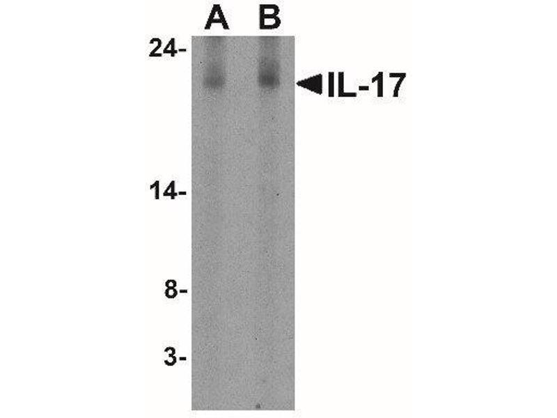 Western Blotting (WB) image for anti-Interleukin 17A (IL17A) (N-Term) antibody (ABIN4324632)
