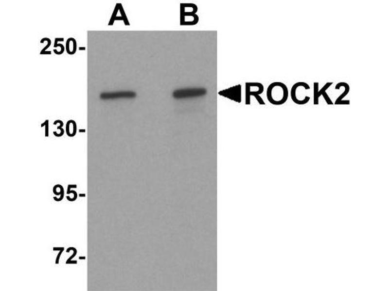 Western Blotting (WB) image for anti-ROCK2 antibody (rho-Associated, Coiled-Coil Containing Protein Kinase 2) (Center) (ABIN4350921)