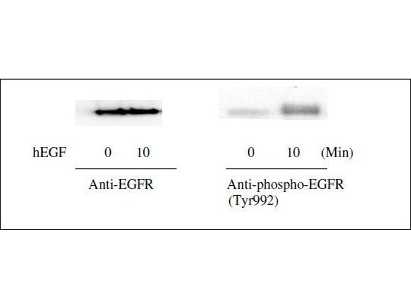 Epidermal Growth Factor Receptor (EGFR) ELISA Kit (9)