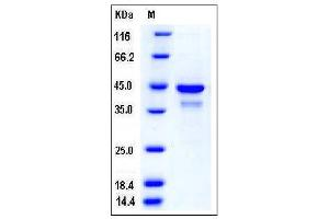 Image no. 1 for Sulfotransferase Family, Cytosolic, 2B, Member 1 (SULT2B1) (AA 2-365) protein (His tag) (ABIN2004272)