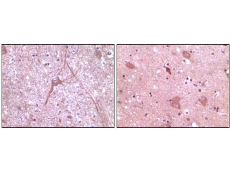 Image no. 2 for anti-Dynamin 2 (DNM2) antibody (ABIN1576147)