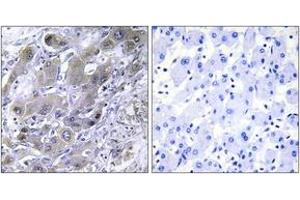 Image no. 1 for anti-Mitochondrial Ribosomal Protein S18A (MRPS18A) (AA 81-130) antibody (ABIN1534507)