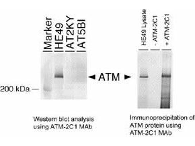 Western Blotting (WB) image for anti-ATM antibody (Ataxia Telangiectasia Mutated) (AA 2577-3056) (ABIN151775)