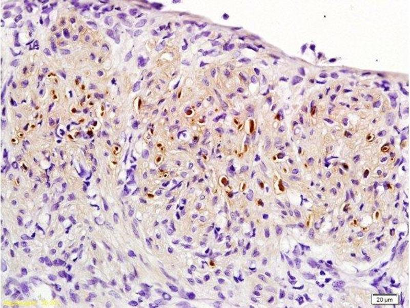 Immunohistochemistry (Paraffin-embedded Sections) (IHC (p)) image for anti-Progesterone Receptor (PGR) (AA 525-575) antibody (ABIN725090)
