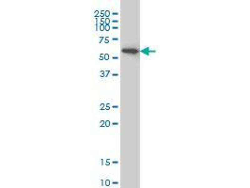 Immunohistochemistry (IHC) image for anti-AKT antibody (V-Akt Murine Thymoma Viral Oncogene Homolog 1) (AA 1-481) (ABIN393859)