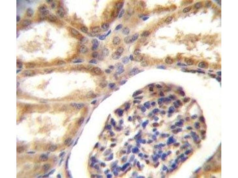Immunohistochemistry (IHC) image for anti-DDR1 antibody (Discoidin Domain Receptor tyrosine Kinase 1) (AA 17-47) (ABIN3030735)