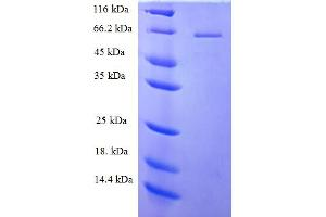 Image no. 1 for Phospholipase C zeta 1 (PLCz1) (AA 1-415), (partial) protein (His-SUMO Tag) (ABIN5711471)