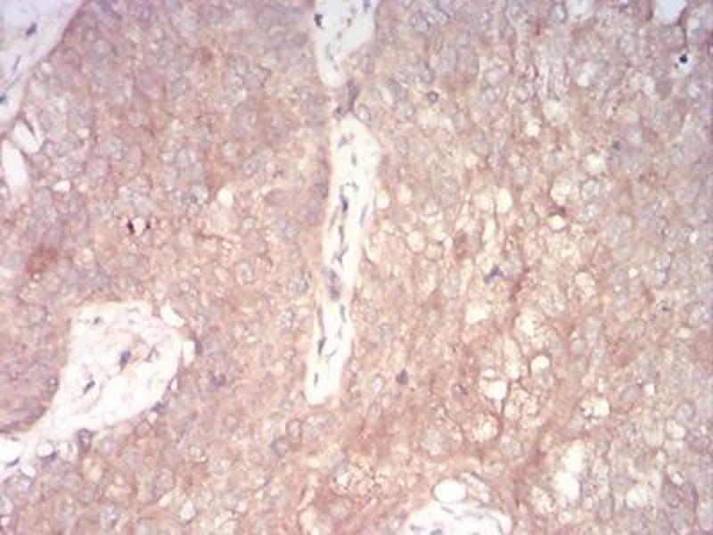 Maus Anti Human Nox4 Antik Rper Abin5542345