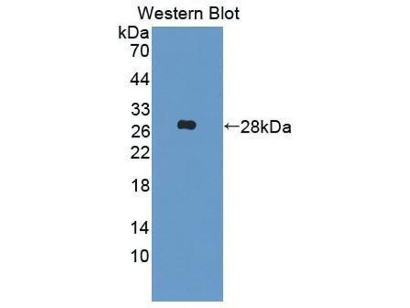 Western Blotting (WB) image for anti-Insulin-Like Growth Factor Binding Protein 6 (IGFBP6) (AA 46-238) antibody (ABIN1859313)