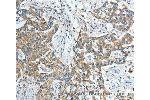 Immunohistochemistry (IHC) image for anti-Interleukin 12 Receptor beta 1 (IL12RB1) antibody (ABIN2427689)