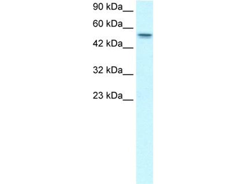 Western Blotting (WB) image for anti-Runt-Related Transcription Factor 1, Translocated To, 1 (Cyclin D-Related) (RUNX1T1) (Middle Region) antibody (ABIN2778221)