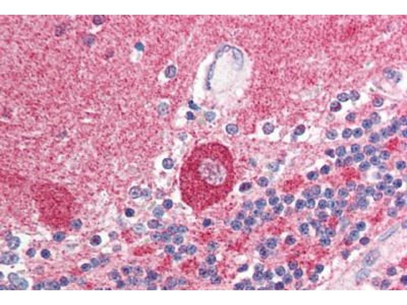 Immunohistochemistry (Paraffin-embedded Sections) (IHC (p)) image for anti-SMT3 Suppressor of Mif Two 3 Homolog 1 (S. Cerevisiae) (SUMO1) (N-Term) antibody (ABIN214521)