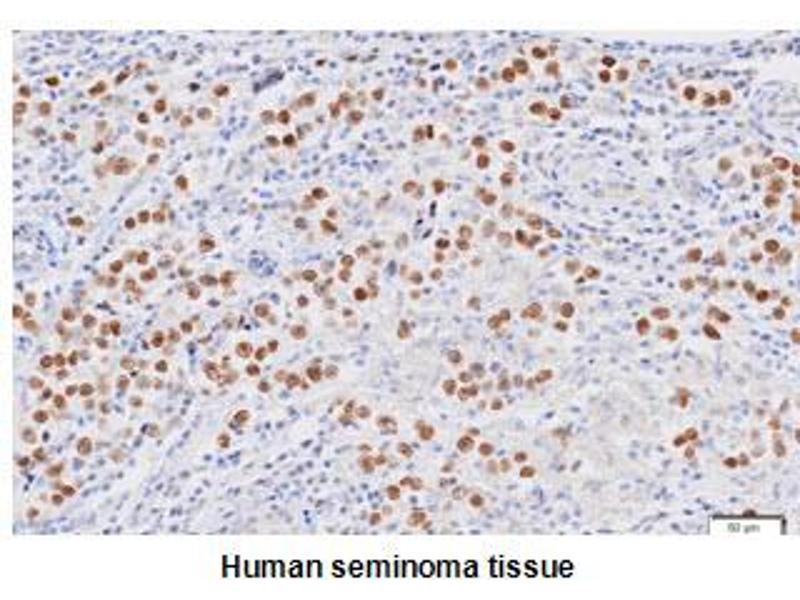 Immunohistochemistry (IHC) image for anti-Nanog Homeobox (NANOG) (AA 1-154), (N-Term) antibody (ABIN317542)