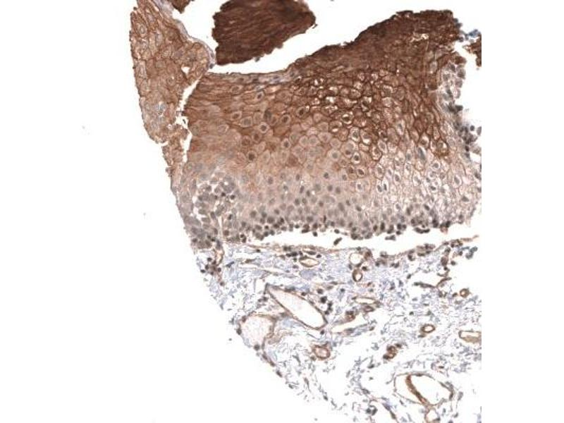 Immunohistochemistry (Paraffin-embedded Sections) (IHC (p)) image for anti-Calcium Channel, Voltage-Dependent, T Type, alpha 1H Subunit (CACNA1H) antibody (ABIN4288334)