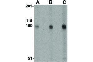 Image no. 1 for anti-Stromal Interaction Molecule 2 (Stim2) (Internal Region) antibody (ABIN6656387)