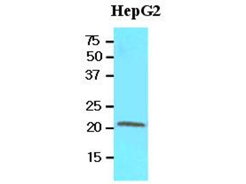 Western Blotting (WB) image for anti-Retinol Binding Protein 4, Plasma (RBP4) (AA 19-201) antibody (ABIN356230)