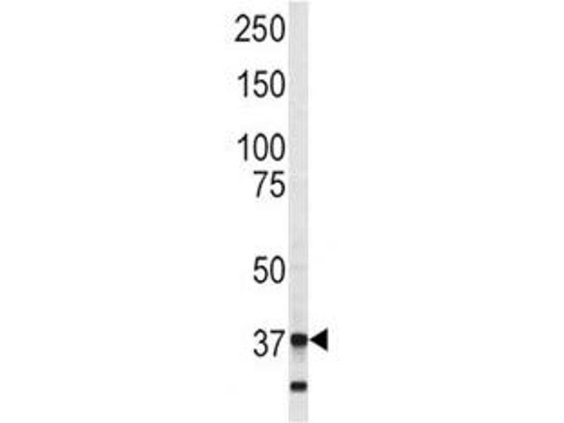 Western Blotting (WB) image for anti-Annexin A5 (ANXA5) (AA 262-291) antibody (ABIN3028465)