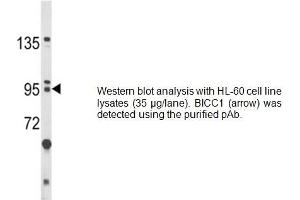 Western Blotting (WB) image for anti-Bicaudal C Homolog 1 (Drosophila) (BICC1) (AA 80-107), (N-Term) antibody (ABIN1981375)