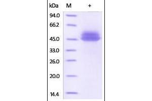 Image no. 1 for Interleukin 12 beta (IL12B) (AA 23-328) (Active) protein (His tag) (ABIN2181334)