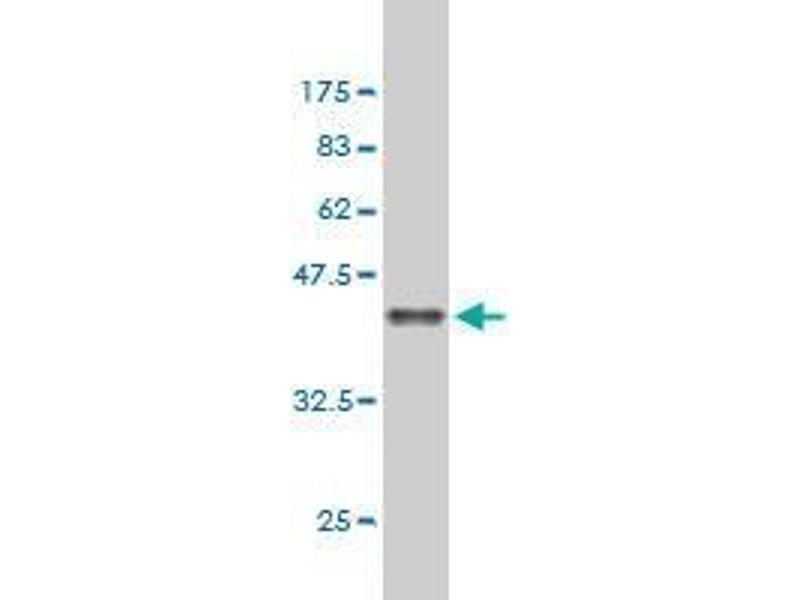 Western Blotting (WB) image for anti-Adenomatous Polyposis Coli (APC) (AA 2744-2845) antibody (ABIN393899)