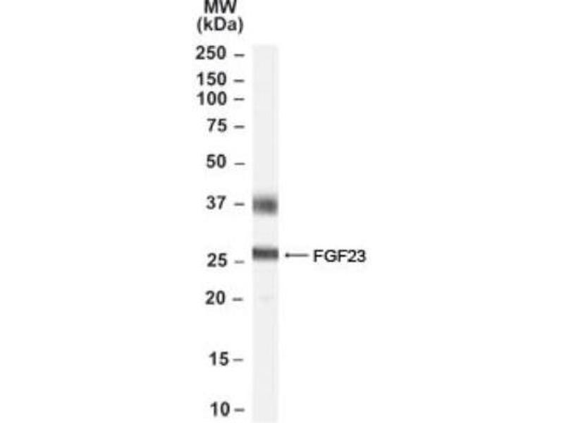 Western Blotting (WB) image for anti-Fibroblast Growth Factor 23 (FGF23) antibody (ABIN188699)