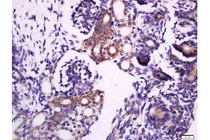Immunohistochemistry (Paraffin-embedded Sections) (IHC (p)) image for anti-Syntaxin 1A (Brain) (STX1A) (pSer188) antibody (ABIN1714932)