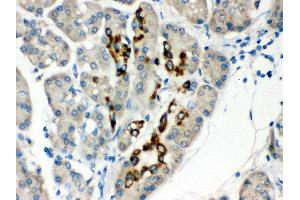 Image no. 3 for anti-Paired Box 6 (PAX6) (AA 195-233), (Middle Region) antibody (ABIN3043379)