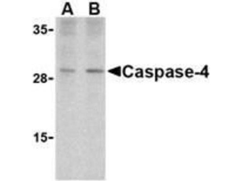 Western Blotting (WB) image for anti-Caspase 4 antibody (Caspase 4, Apoptosis-Related Cysteine Peptidase) (Center) (ABIN4288127)
