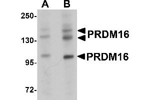 Image no. 2 for anti-PR Domain Containing 16 (PRDM16) (C-Term) antibody (ABIN1030598)