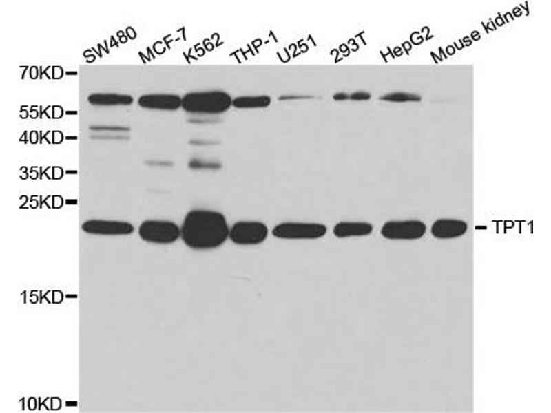 Western Blotting (WB) image for anti-Tumor Protein, Translationally-Controlled 1 (TPT1) antibody (ABIN1876630)