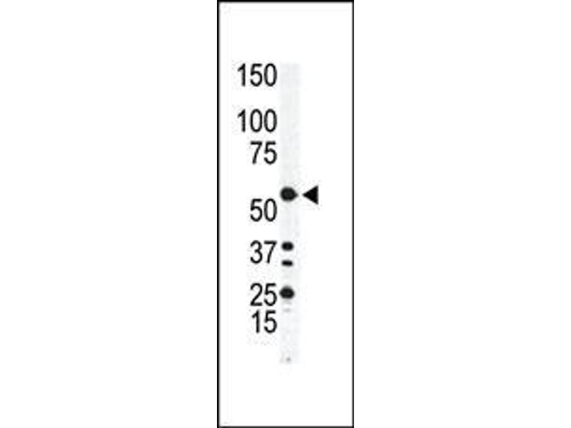 Western Blotting (WB) image for anti-Integrin-Linked Kinase (ILK) (AA 11-41), (N-Term) antibody (ABIN391993)