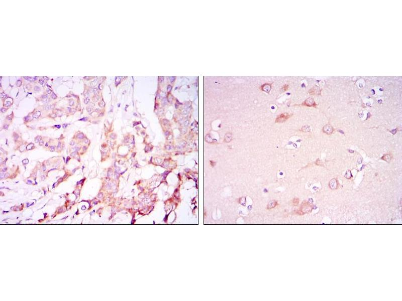 Immunohistochemistry (IHC) image for anti-PDPK1 antibody (3-phosphoinositide Dependent Protein Kinase-1) (ABIN969347)