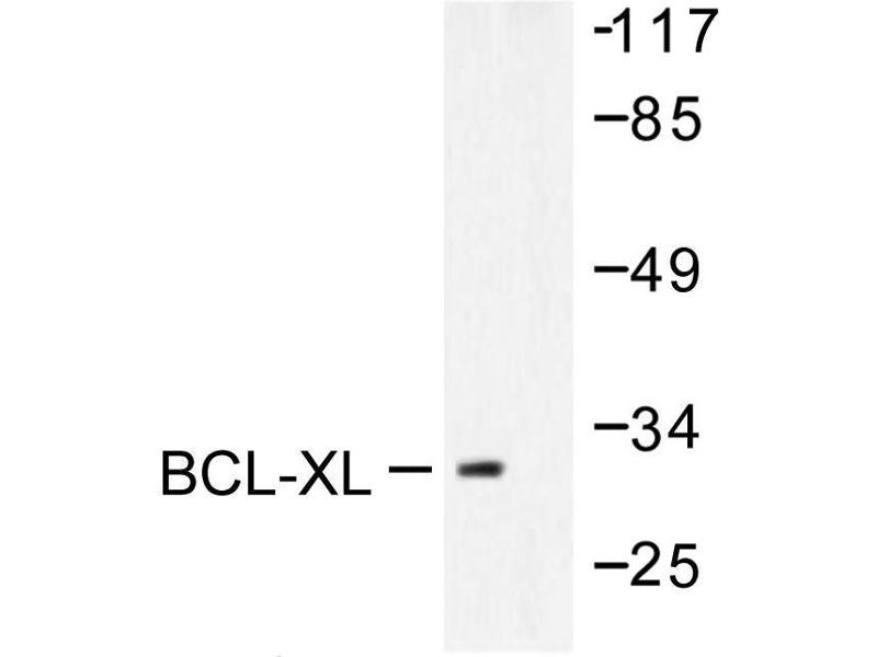 image for anti-BCL2-Like 1 (BCL2L1) antibody (ABIN265327)